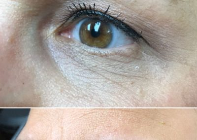 T-Permanent-Makeup-Permanent-Cosmetics-In-NJ-Permanent-Eyebrows-Permanent-Eyeliner-02-04