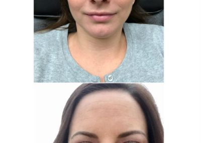 T-Permanent-Makeup-Permanent-Cosmetics-In-NJ-Permanent-Eyebrows-Permanent-Eyeliner-04-06
