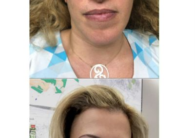 T-Permanent-Makeup-Permanent-Cosmetics-In-NJ-Permanent-Eyebrows-Permanent-Eyeliner-05-07