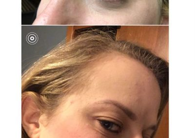 T-Permanent-Makeup-Permanent-Cosmetics-In-NJ-Permanent-Eyebrows-Permanent-Eyeliner-18-10